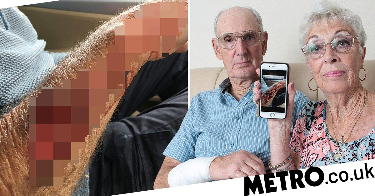Dog bit chunk out of arm of pensioner, 82, in park