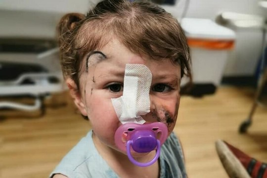 WESSEX NEWS AGENCY Jim Hardy email news@britishnews.co.uk mobile 07501 221880 A two-year-old girl on a family day out was millimetres from being blinded for life when a she stroked a dog and it tried to bite her face off. Onlookers shouted in horror as blood streamed from deep wounds on little Isla Williams' cheek and nose. And she almost lost the sight in her right eye - the dog's savage attack left a bite mark an inch away. Isla's family took this pic of her in hospital