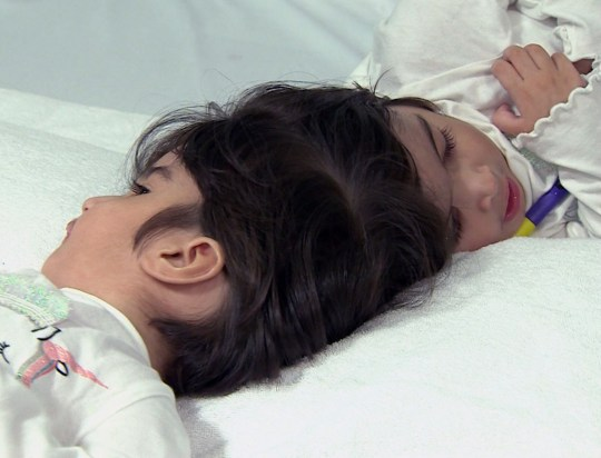 Great Ormond Street Hospital separation of two-year-old conjoined twins Safa and Marwa Ullah, from Charsadda in Pakistan / Source: Great Ormond Street Hospital