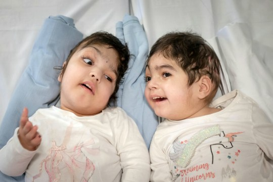 Twins Safa and Marwa Ullah after their seperation. The surgeons behind the life-changing separation of a set of craniopagus conjoined twins at London???s Great Ormond Street Hospital are launching a new charity today ??? Gemini Untwined ??? to support similar pioneering operations in the future