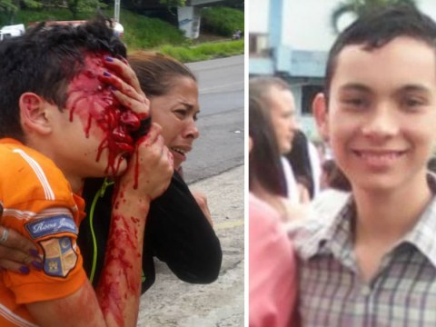 Boy, 16, shot in face by police during protest loses both eyes