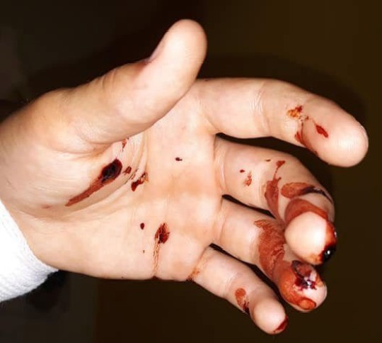 Hand wounds