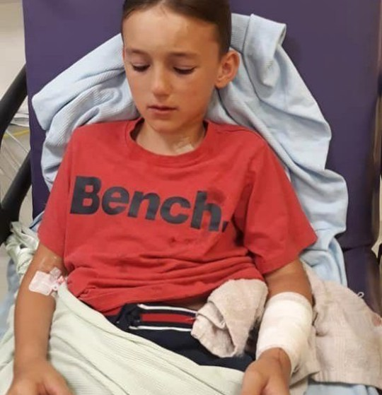 "A child dog attack victim ""thought he was going to die"" after he was savagely mauled by a dog at the start of his summer holidays. Cooper Johnstone, 11, went to call for a friend on Wednesday [July 24] when his family say he was attacked by a Staffordshire Bull Terrier in Ormskirk, Lancashire. Caption: Injuries suffered by Cooper Johnstone, 11, from Ormskirk, Lancashire, after he was attacked by a Staffordshire Bull Terrier on July 24, 2019"
