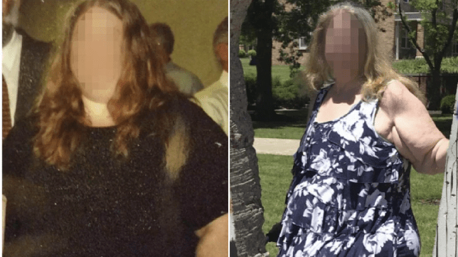 Photos of sex abuse victim 'MT' before and after she slimmed down from 600-pounds to 362 pounds