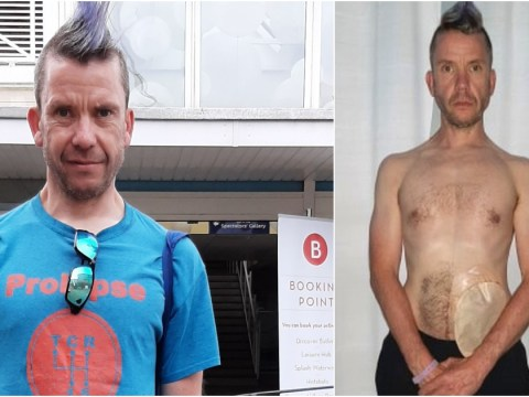 Dad kicked out of Butlins pool because he has a colostomy bag