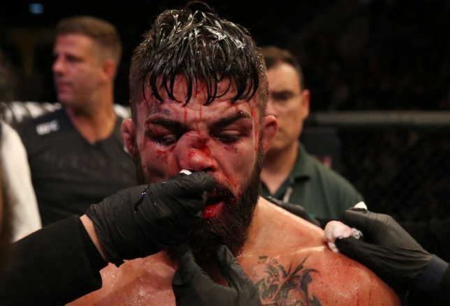 Vicente Luque broke Mike Perry's nose