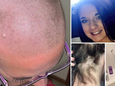 Woman forced to shave head after someone spiked her shampoo