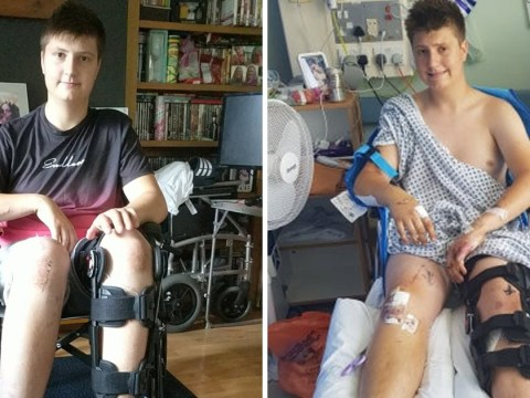 Boy racer crash victim 'lucky to be alive' after leg was left hanging off