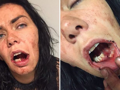 Mum's battle to rebuild life after pub landlord shattered jaw in unprovoked attack