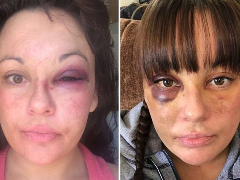 Woman battered by boyfriend because she lost Facebook friends