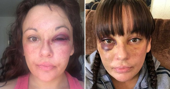 Jenna Goddard was attacked by her partner Richard Wilson