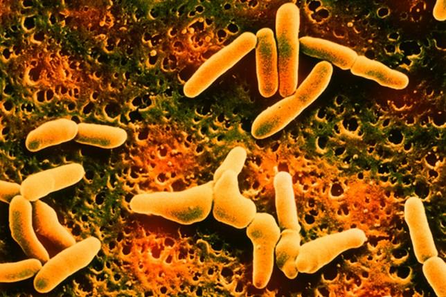 Listeria Denitrificans. Sem X 15 000 (Photo By BSIP/UIG Via Getty Images)