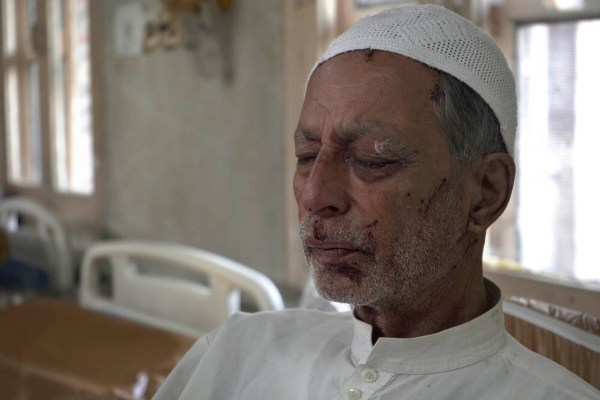 Mohammad Siddiq, 70, who was wounded a day before recovers inside a hospital in Srinagar, Indian controlled Kashmir, Sunday, Aug. 18, 2019. The elderly Kashmiri man says he was wounded when an Indian police man fired a pellet gun at him while returning home from a mosque badly damaging his left eye. (AP Photo/ Dar Yasin)