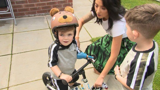 https://www.itv.com/news/utv/2019-08-16/parents-speak-out-after-son-hurt-by-remarks-about-his-arm/ Parents speak out after son hurt by remarks about his arm. The parents of a two-year-old boy born with one hand are urging people to be more accepting of difference after their son said he wanted to hide his arm after a series of upsetting comments. Little Hunter Beeton?s parents Tony and Megan have shared a video of him asking to hide his arm due to his experiences with others. ?I sort of thought, you know he?ll take no notice of it, he?s two, he?ll wake up tomorrow and he?ll forget about it,? Megan told UTV News. ?But then it was just me and him in the house and I asked him ?go and get your school bag? and we?ll go out in the car but he says ?no Mum, I?ve got no hand?. ?I said ?you do, come on you get your school bag?, he says ?no, I want to hide it?. At that stage he started pulling his little sleeve down and says ?I don?t want anybody to see it, nobody laugh at me?.?