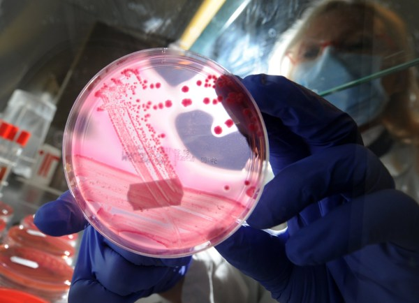 """Medical-technical assistant Brigitte Weiss holds a petri dish with a culture medium and bacterial strains of enterohaemorrhagic E. coli (EHEC) at the UKE university hospital in Hamburg-Eppendorf, northern Germany, on May 24, 2011. Worries grew in Germany about infections caused by a strain of the E. coli bacterium after authorities reported the death of an 83-year-old and a """"very unusual"""" number of cases. AFP PHOTO CHRISTIAN CHARISIUS GERMANY OUT (Photo credit should read CHRISTIAN CHARISIUS/AFP/Getty Images)"""