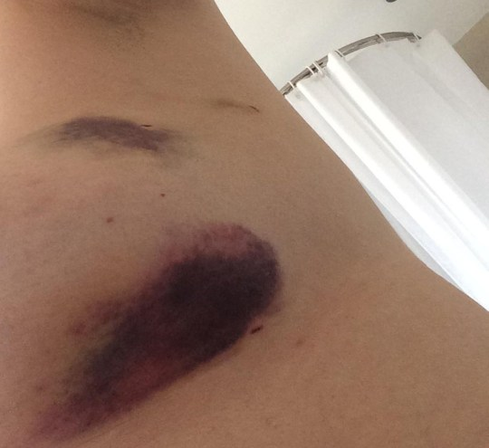 Amanda with bruising on her breast (PA REAL LIFE/COLLECT)