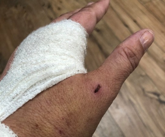 Helen Hayes, 49, from Wilmslow was attacked by an old English sheepdog outside her caravan in Benllech, Anglesey in June. It ate flesh from her hand and left her with horrendous injuries. Credit: Daily Post Wales