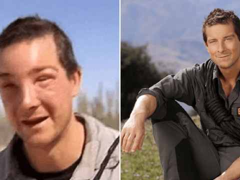Bear Grylls suffers almost lethal allergic reaction from bee sting while filming new series