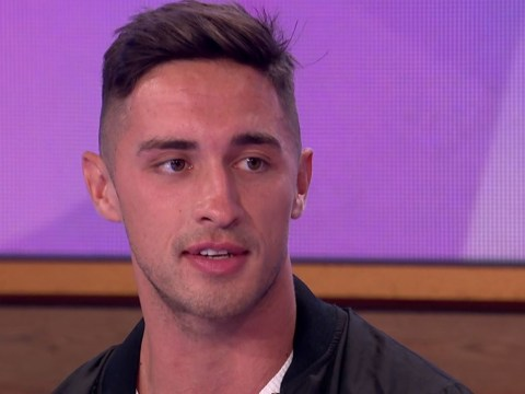 Love Island winner Greg O'Shea has missed having facial surgery because he's too busy
