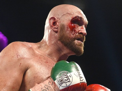 Tyson Fury gets 47 stitches in his face after huge cuts suffered in Otto Wallin fight
