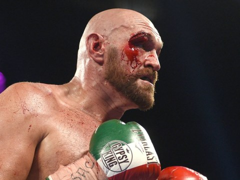 Plastic surgeon on standby to get Tyson Fury ready for Deontay Wilder rematch