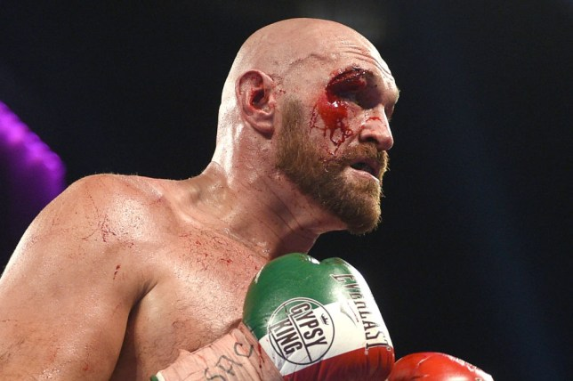 Tyson Fury covered in blood during his fight against Otto Wallin
