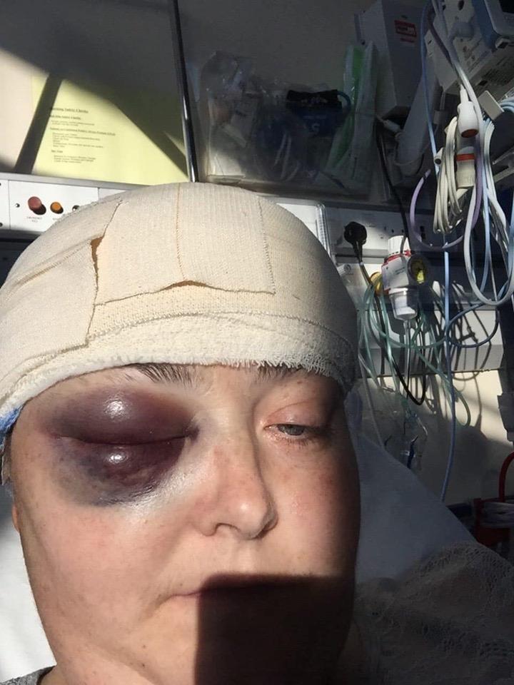 Kelly Ann dopo la sua sveglia operazione di craniotomia