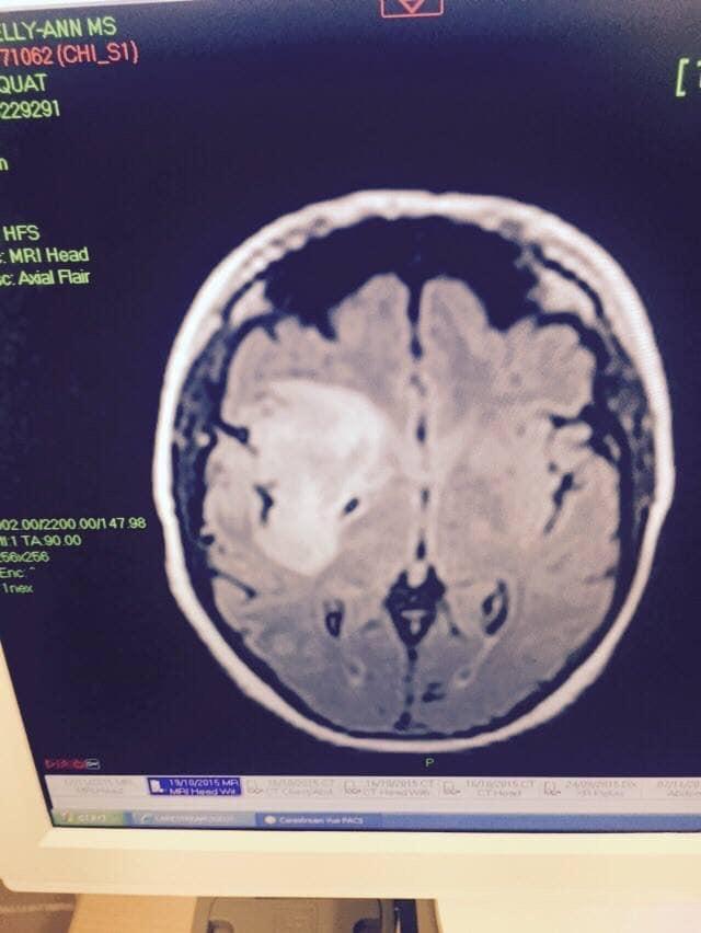 La scansione del cervello di Kelly (Immagine: Kelly Ann Alexander)