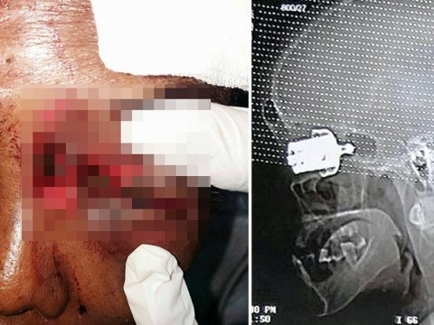 Woman blinded in one eye after pressure cooker whistle exploded into her skull