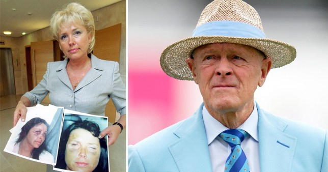 Pictures of Margaret Moore showing pictures of her abuse injuries next to ex-boyfriend Geoffrey Boycott