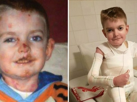 Boy whose skin is falling off gets 18,000 birthday cards
