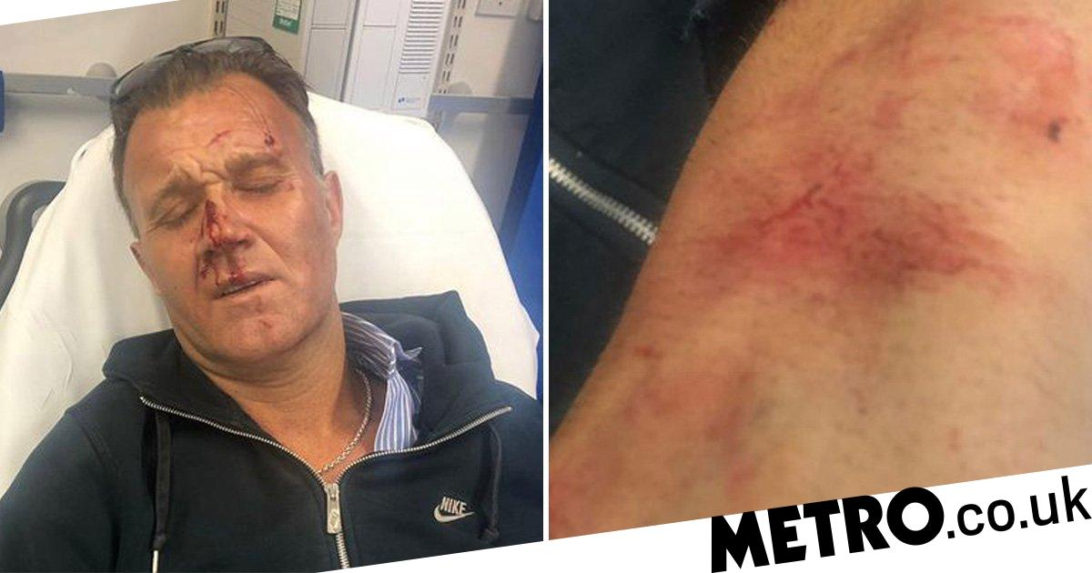 Man battered after trying to stop racist attack on boy