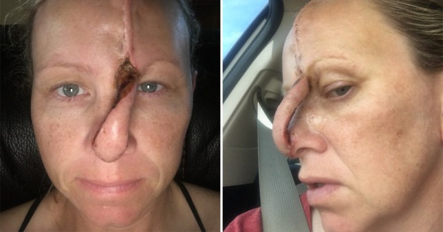 Woman with massive open wound has a hole in her nose
