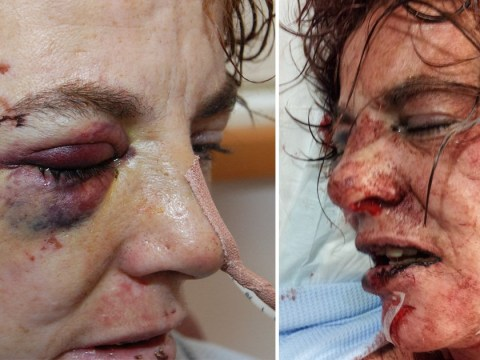 Abuse survivor releases horrifying pictures ahead of attacker's early release