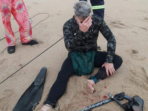 Diver shot himself in the head with spear gun and swam to shore for help