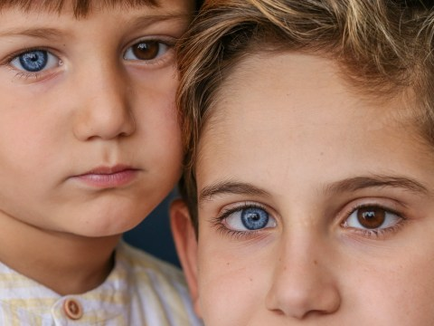 Amazing photographs of brothers both born with one brown eye and one blue