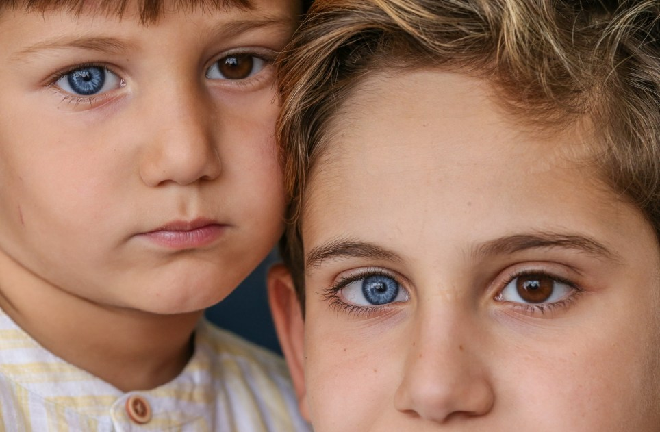 BURSA, TURKEY - SEPTEMBER 26: Mehmet Selman (R) and Kerem Selman (L), brothers who have heterochromia, which means different colors with blue, green and brown eyes etc., pose for a photo in Inegol district of Bursa, Turkey on September 26, 2019. (Photo by Sergen Sezgin/Anadolu Agency via Getty Images)