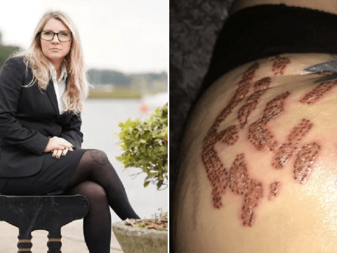 Mum's treatment to remove stretch marks leaves her with serious scarring
