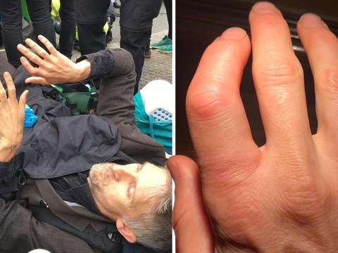 Extinction Rebellion protester says police 'snapped his finger like a carrot'