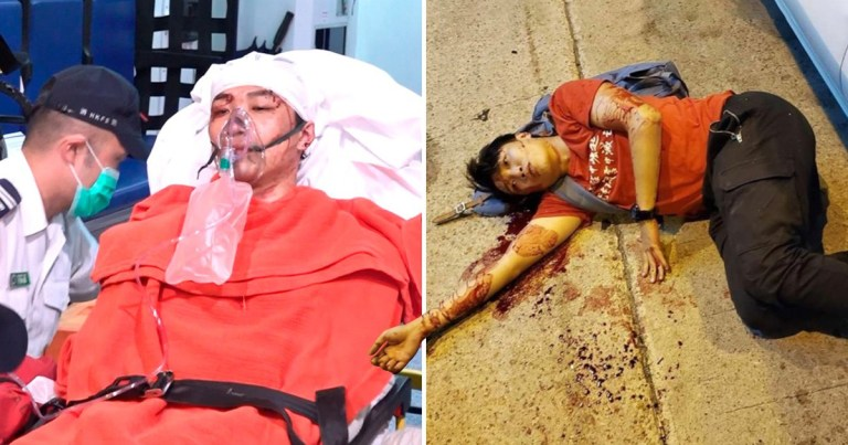 Hong Kong pro-democracy protest leader Jimmy Sham in hospital next to picture of him lying on floor after being attacked with hammers