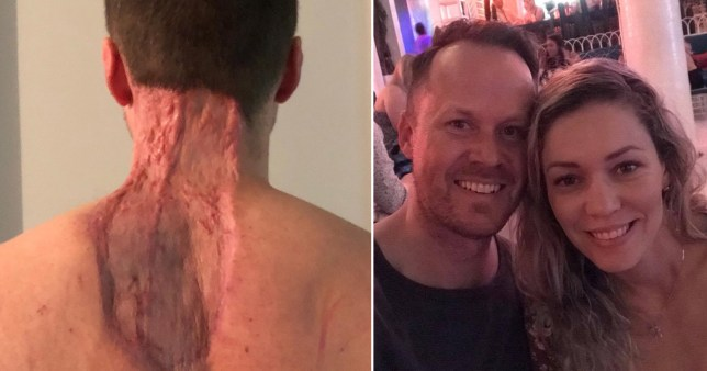 Ryan Glossop had a huge chunk of his neck removed after a skin cancer diagnosis