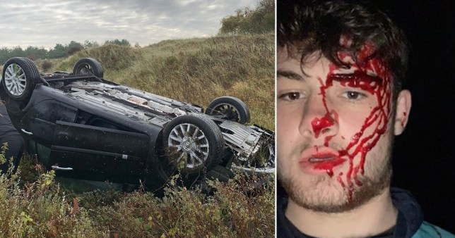 Driver left covered in blood after car completely flipped over