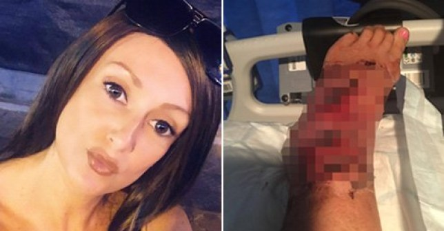Faye Wilkes, 41, had to fly home and rush to hospital after contracting a flesh-eating bug (Picture: SWNS)
