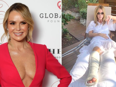 Amanda Holden rushed into surgery after breaking leg in two places while on holiday