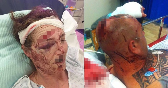 Newlyweds left with horrific injuries after 'standing up to boy who returned with gang'