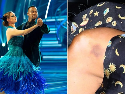 Strictly Come Dancing rehearsals leaves Catherine Tyldesley with severe bruising on her knees
