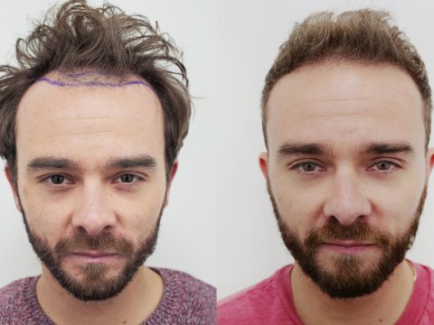 Coronation Street's Jack P Shepherd 'fined by show bosses' for plugging hair transplant treatment