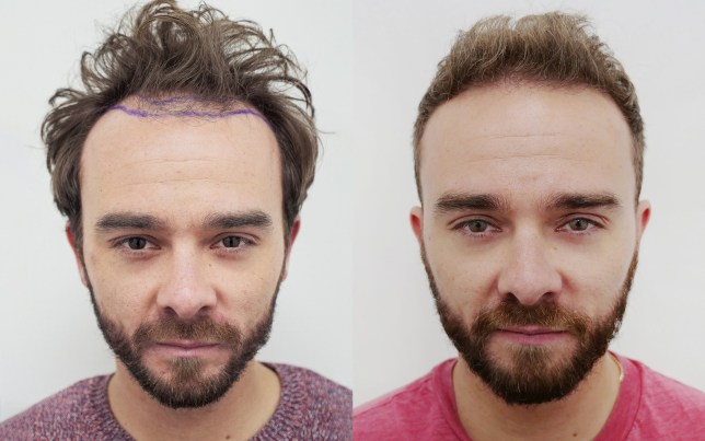Pictured is: Jack P Shepherd before and after hair transplant - head on. Coronation Street star Jack P Shepherd has shown off the results of his first hair transplant and revealed: ???I had to do it to protect my mental health.??? Disclaimer: While Cavendish Press (Manchester) Ltd uses its' best endeavours to establish the copyright and authenticity of all pictures supplied, it accepts no liability for any damage, loss or legal action caused by the use of images supplied. The publication of images is solely at your discretion. For terms and conditions see http://www.cavendish-press.co.uk/pages/terms-and-conditions.aspx