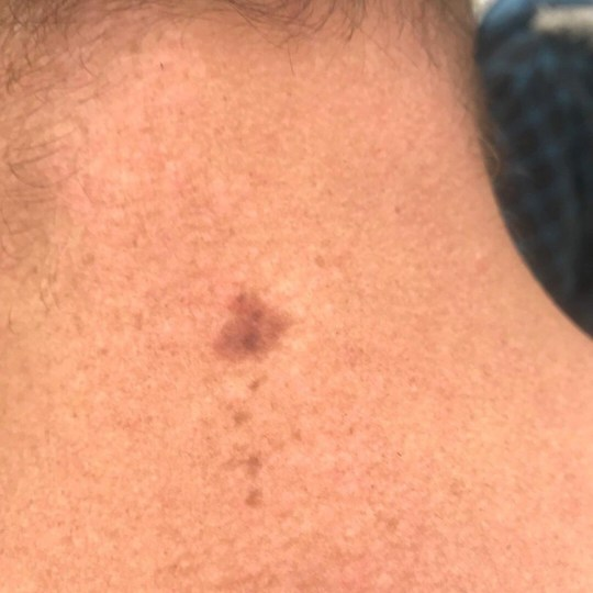 Dad Has Huge Slab Of His Neck Removed After Skin Cancer Diagnosis Metro News