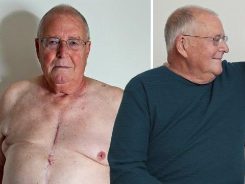 Male breast cancer survivor faced stigma for having 'woman's disease'